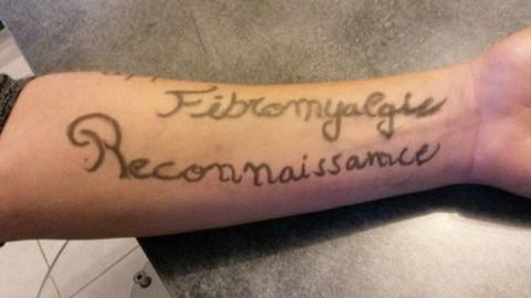 Fibromyalgie reconnaissance